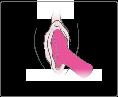 Ambi de Lovense peut être utilisé pour une stimulation générale.